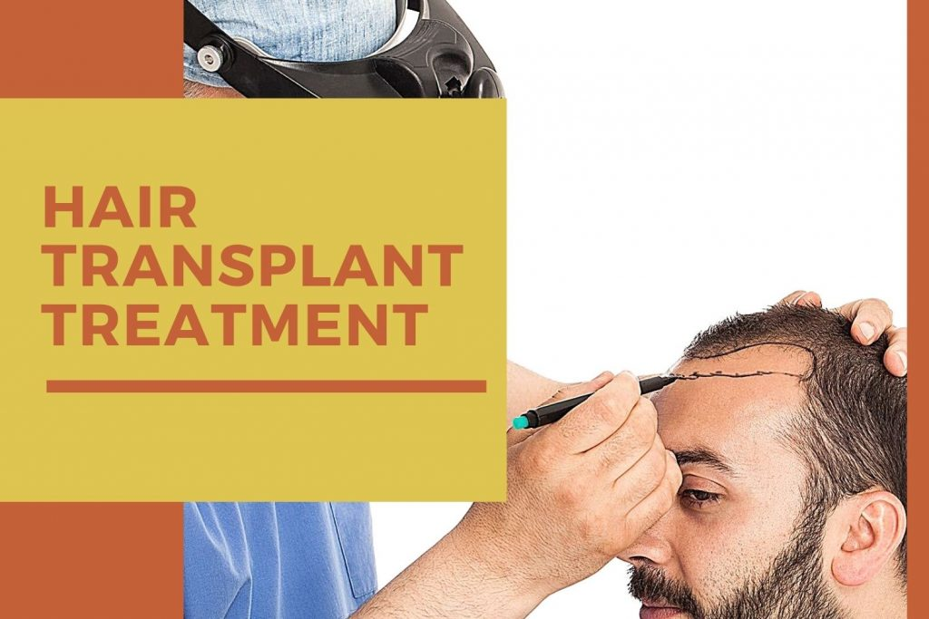 How to treat Hair Loss with a Hair Transplant Treatment for People over 50