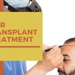 How to treat Hair Loss with a Hair Transplant Treatment for People over 50?