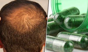 Supplements and Hair Loss